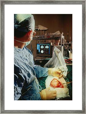 Magic Wand Used On Patient's Brain By Neurosurgeon Framed Print by Geoff Tompkinson