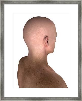 Male Head And Shoulders, Artwork Framed Print