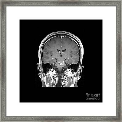 Mri Brainstem Cavernous Malformations Framed Print by Medical Body Scans