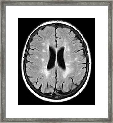 Multiple Sclerosis, Mri Scan Framed Print by Du Cane Medical Imaging Ltd