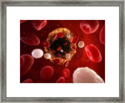Narrowed Artery, Artwork Framed Print by Sciepro