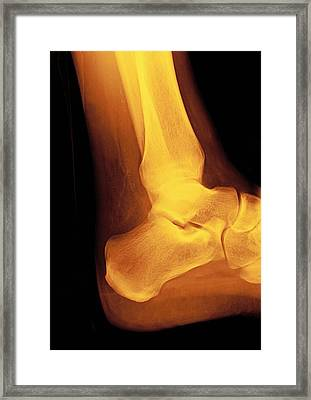 Normal Ankle Joint, X-ray Framed Print by Miriam Maslo