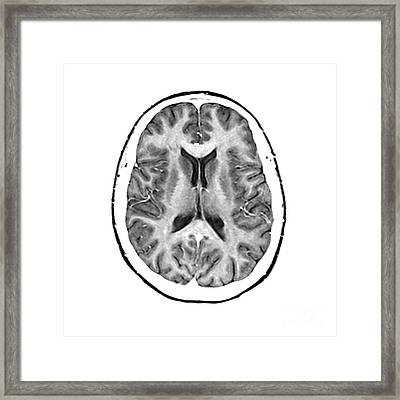 Normal Cross Sectional Mri Of The Brain Framed Print by Medical Body Scans