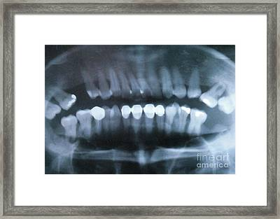 Panoramic Dental X-ray Framed Print