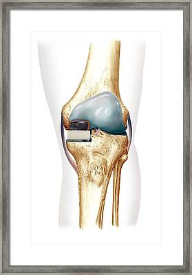 Partial Knee Replacement, Artwork Framed Print by D & L Graphics