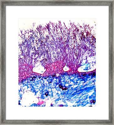 Penicillium Mould, Light Micrograph Framed Print