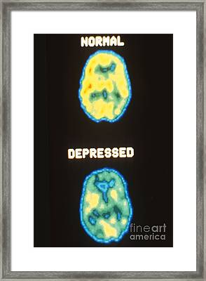 Pet Scans, Deoxyglucose Study Framed Print by Science Source