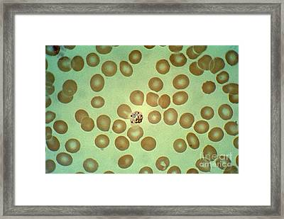 Plasmodium Malariae Lm Framed Print by Science Source