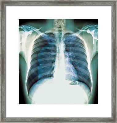 Pneumothorax, X-ray Framed Print by Du Cane Medical Imaging Ltd