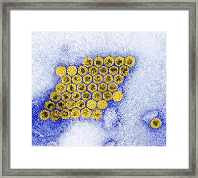 Polio Virus, Tem Framed Print by Dr Klaus Boller