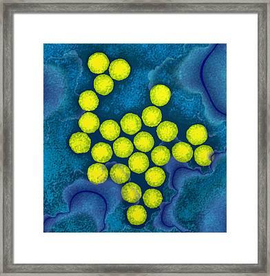 Polio Viruses, Tem Framed Print by Dr Linda Stannard, Uct