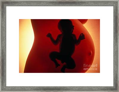 Pregnancy Composite Image Framed Print by Science Source