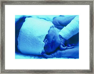 Premature Baby With Jaundice Having Phototherapy Framed Print by Mauro Fermariello