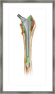 Prosthetic Hip Joint, Artwork Framed Print by D & L Graphics