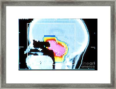 Proton Beam Therapy Framed Print by Science Source