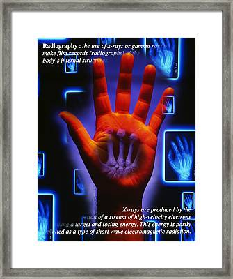 Radiography Framed Print by Tim Vernon, Lth Nhs Trust