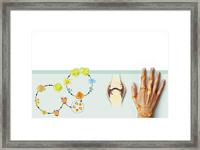 Rheumatoid Arthritis Mechanism, Artwork Framed Print by Claus Lunau