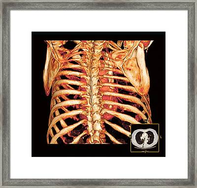 Rib Cage And Heart, 3d Ct Scan Framed Print