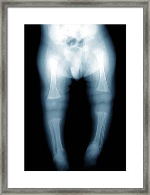Rickets, X-ray Framed Print by Zephyr
