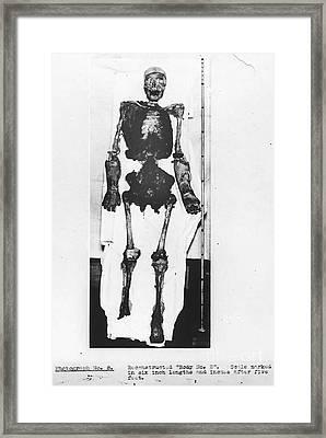 Skeletal Reconstruction, Buck Ruxton Framed Print