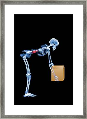 Skeleton Lifting A Box Incorrectly Framed Print