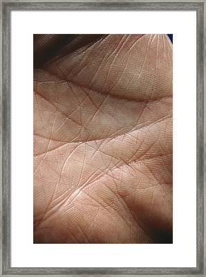 Skin Framed Print by Mike Devlin