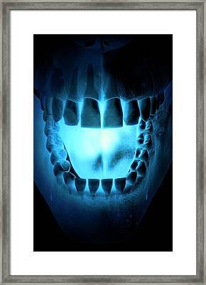 Skull, Teeth And Tongue Framed Print by MedicalRF.com