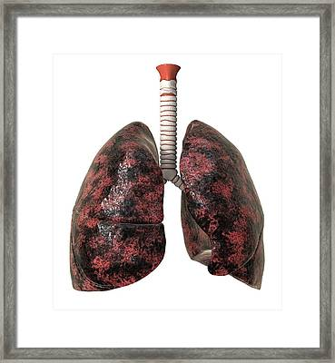 Smoker's Lungs, Artwork Framed Print by David Mack