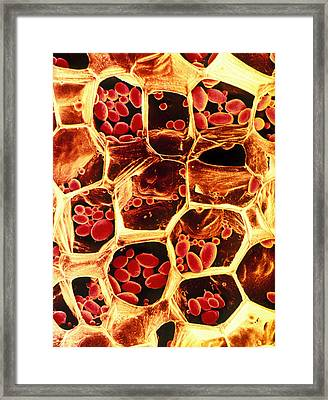 Starch Grains In Potato Cells Framed Print by Dr Jeremy Burgess