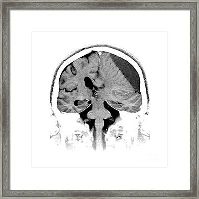 Subdural Hematoma Framed Print by Medical Body Scans