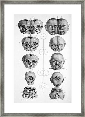Surgical Anatomy 1856 Framed Print by Science Source
