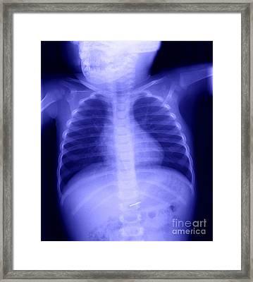 Swallowed Nail Framed Print by Ted Kinsman