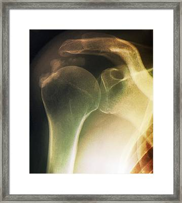 Tendinitis Of The Shoulder, X-ray Framed Print by Zephyr