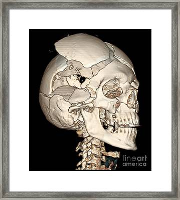Three-dimensional Ct Reconstruction Framed Print