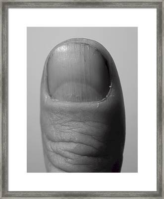 Thumb Framed Print
