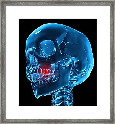 Toothache, Conceptual Artwork Framed Print by Andrzej Wojcicki