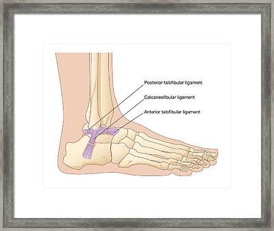 Torn Ankle Ligaments, Artwork Framed Print by Peter Gardiner