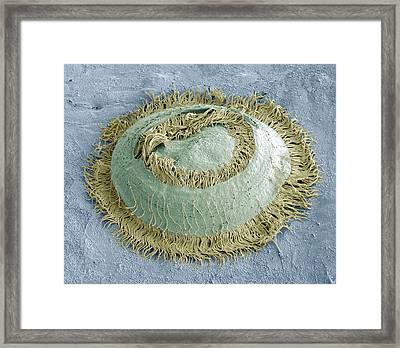 Trichodina Parasite, Sem Framed Print by Steve Gschmeissner