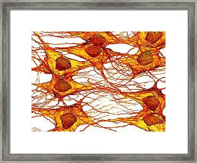 Tumour Cells Framed Print