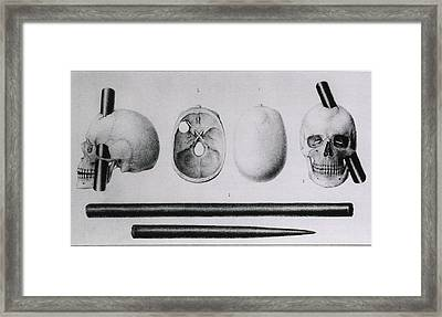 Various Views Of The Famous Wound Framed Print by Everett
