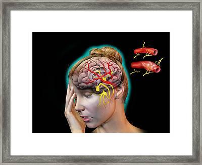 Vascular Causes Of Headaches Framed Print