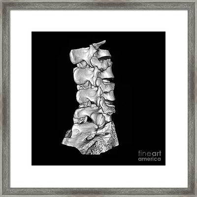 View Of Lumbar Spine Framed Print by Medical Body Scans