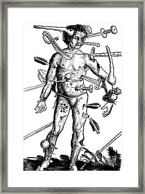 Wound Man 1517 Framed Print by Science Source