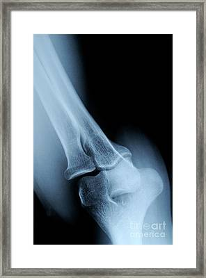 X-ray Image Of Mature's Man Elbow Framed Print by Sami Sarkis