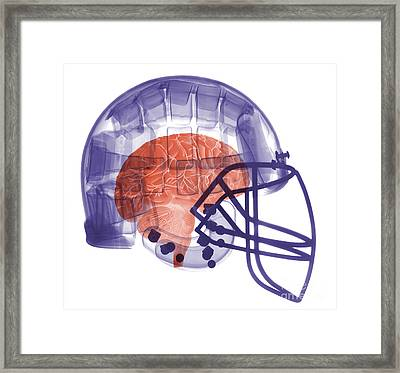X-ray Of Head In Football Helmet Framed Print by Ted Kinsman