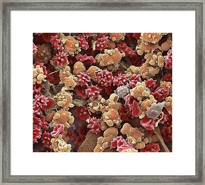 Cells From A Urine Infection, Sem Framed Print by Steve Gschmeissner