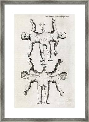 Conjoined Twins, 18th Century Framed Print by Middle Temple Library