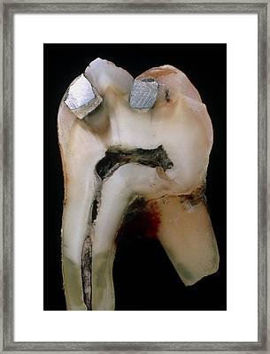 Extracted Molar Framed Print by Dr Jeremy Burgess