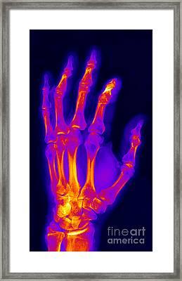 Finger Fracture Framed Print