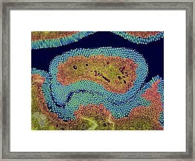 Large Intestine Framed Print by Steve Gschmeissner